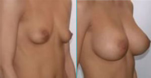 Breast augmentation in Tunisia by Cosmetic Tour : Before and after