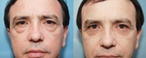 Blepharoplastie Tunisie : Chirurgie des paupières