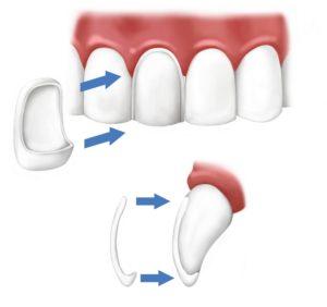 facette dentaire ceramique