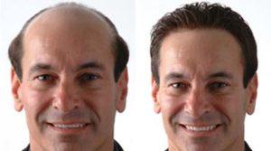 Greffe de cheveux Tunisie : Greffe FUE Tunisie