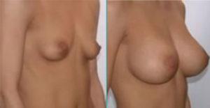 augmentation-mammaire-tunisie avant et après