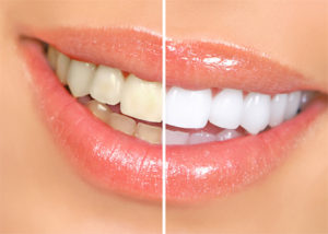 Cosmetic Dentistry: Tooth whitening Tunisia
