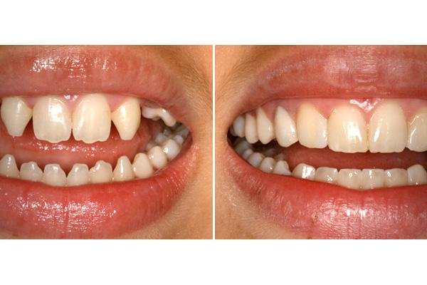 facette dentaire avant apres