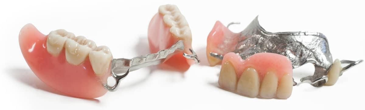 prothese dentaire partielle en Tunisie