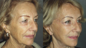 Facial lift: before and after