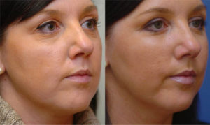 Mid face lift: before and after