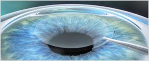 Presbyopia treatment by Cosmetic Tour : Eye surgery in Tunisia