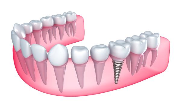 Implants dentaire en Tunisie