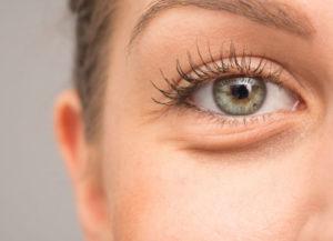 blepharoplastie-poches-yeux