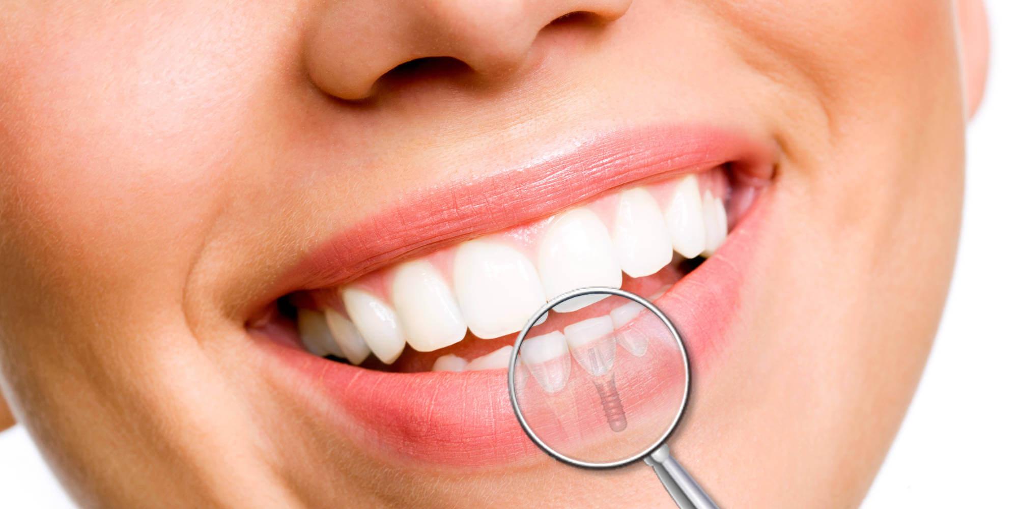 implants dentaires traitement tâches jaunâtres