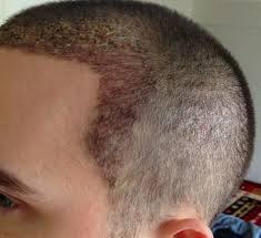 greffe capillaire