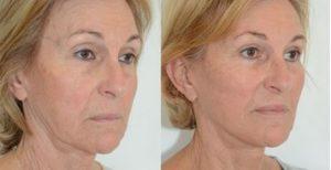 lifting cervico facial visage