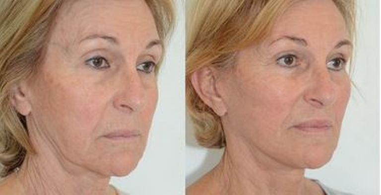 lifting cervico facial prix